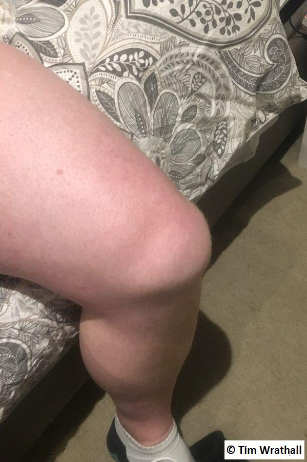 My damaged knee, one our after it happened.