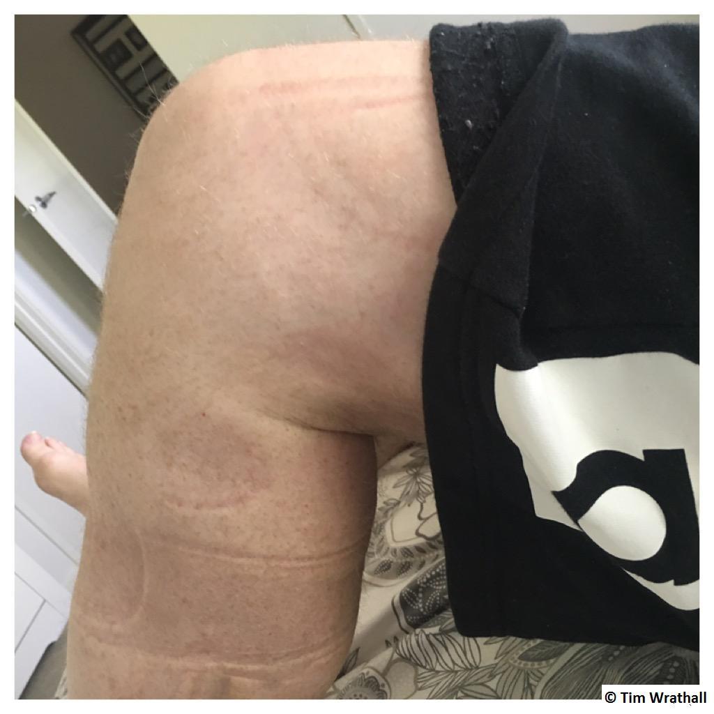 Bending my knee at a 45deg angle.